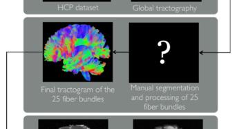Così il nostro cervello 'sfugge' alle immagini